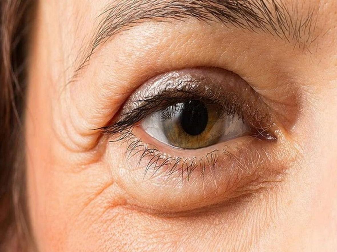 علت و درمان پف زیر چشم